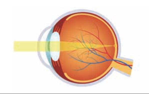 Ojo normal, la imagen se proyecta en la retina
